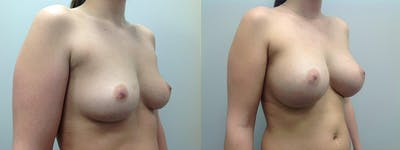 Breast Augmentation Gallery - Patient 5681455 - Image 1