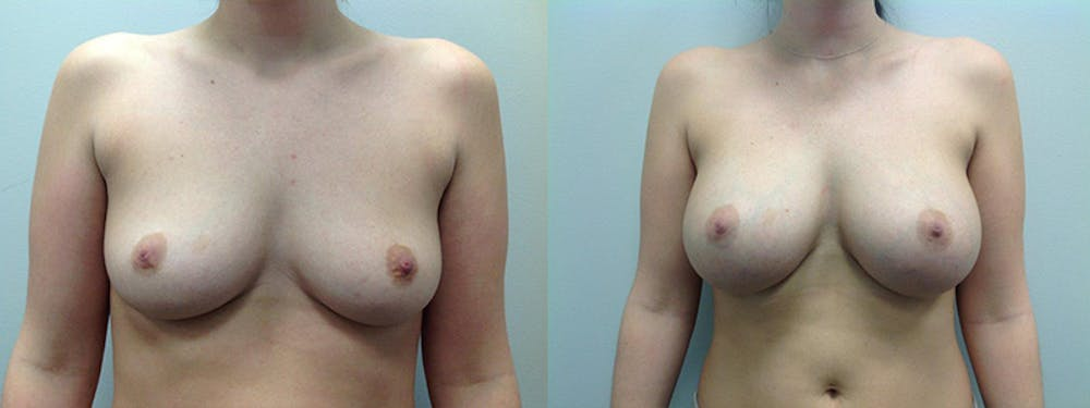 Breast Augmentation Gallery - Patient 5681456 - Image 1