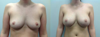 Breast Augmentation Gallery - Patient 5681456 - Image 23