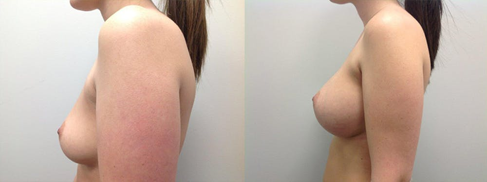 Breast Augmentation Gallery - Patient 5681457 - Image 1