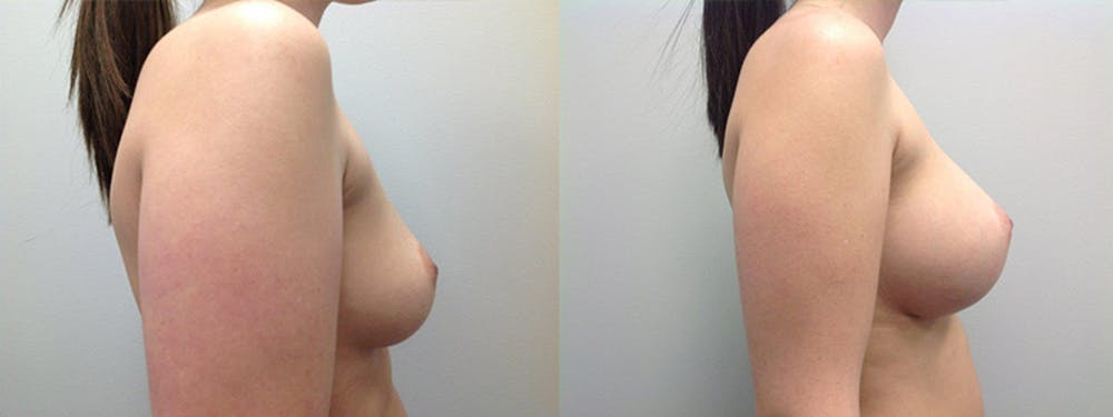 Breast Augmentation Gallery - Patient 5681458 - Image 1