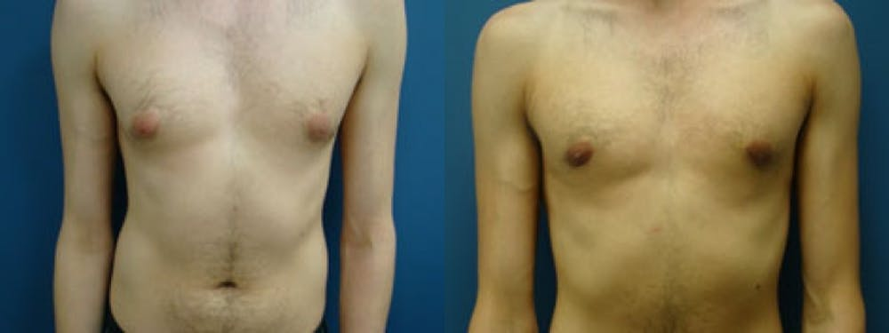 Gynecomastia/Male Breast Reduction Gallery - Patient 5681460 - Image 1