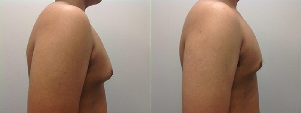 Gynecomastia/Male Breast Reduction Gallery - Patient 5681462 - Image 1
