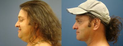 Liposuction Gallery - Patient 5681467 - Image 2