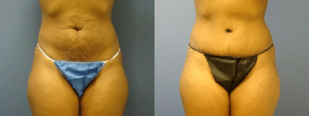 Before & After Liposuction in Pittsburgh