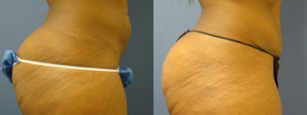 Liposuction Gallery - Patient 5681468 - Image 2