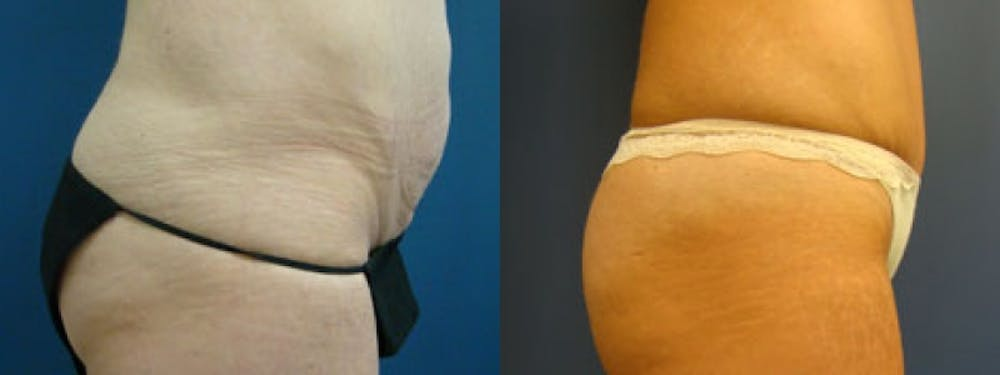 Liposuction Gallery - Patient 5681469 - Image 1