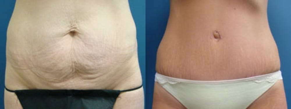 Liposuction Gallery - Patient 5681469 - Image 2