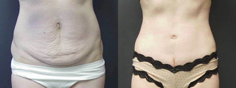Liposuction Gallery - Patient 5681470 - Image 1