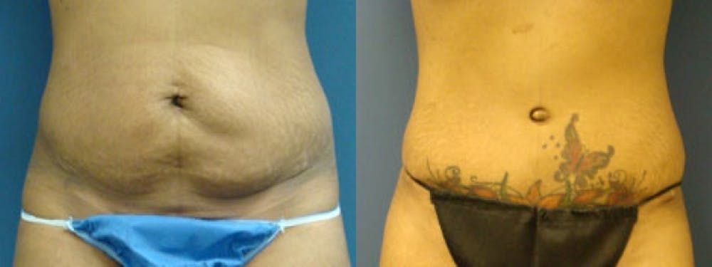 Liposuction Gallery - Patient 5681471 - Image 1