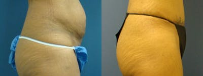 Liposuction Gallery - Patient 5681471 - Image 2