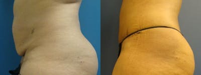 Liposuction Gallery - Patient 5681472 - Image 2