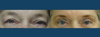 Eyelid Surgery Gallery - Patient 5681473 - Image 1