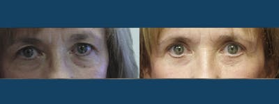 Eyelid Surgery Gallery - Patient 5681474 - Image 1
