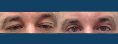 Eyelid Surgery Gallery - Patient 5681475 - Image 1