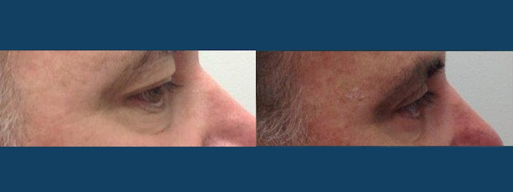 Eyelid Surgery Gallery - Patient 5681475 - Image 2