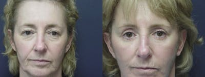 Facelift Gallery - Patient 5681478 - Image 1