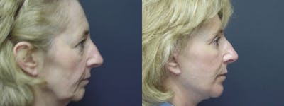 Facelift Gallery - Patient 5681478 - Image 2
