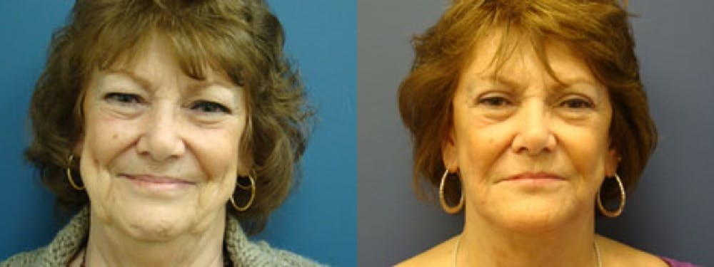 Facelift Gallery - Patient 5681481 - Image 1