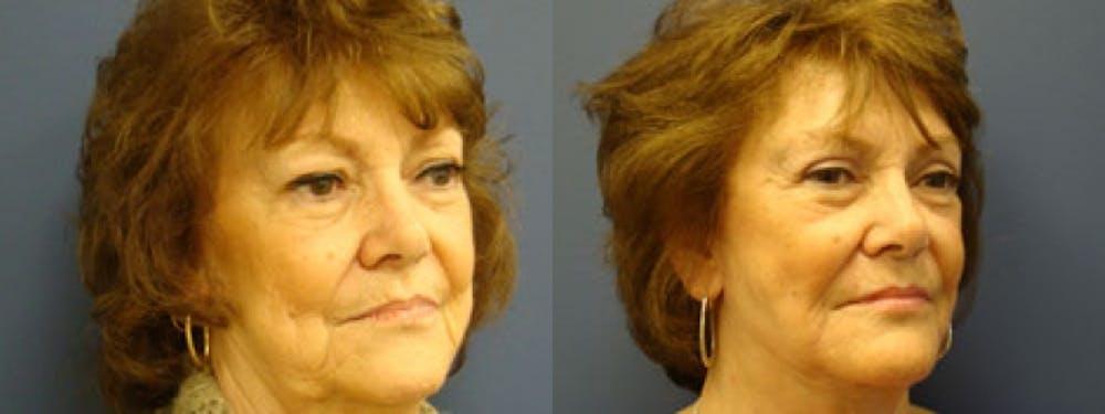 Facelift Gallery - Patient 5681481 - Image 2