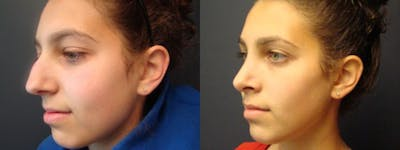 Rhinoplasty Gallery - Patient 5681489 - Image 1