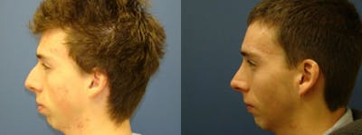 Rhinoplasty Gallery - Patient 5681490 - Image 1
