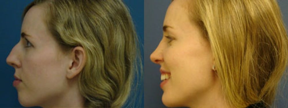Rhinoplasty Gallery - Patient 5681491 - Image 1
