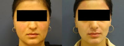 Rhinoplasty Gallery - Patient 5681494 - Image 1