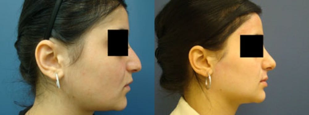 Rhinoplasty Gallery - Patient 5681494 - Image 2