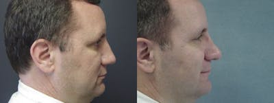 Rhinoplasty Gallery - Patient 5681495 - Image 1