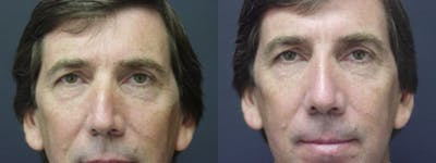 Rhinoplasty Gallery - Patient 5681496 - Image 1