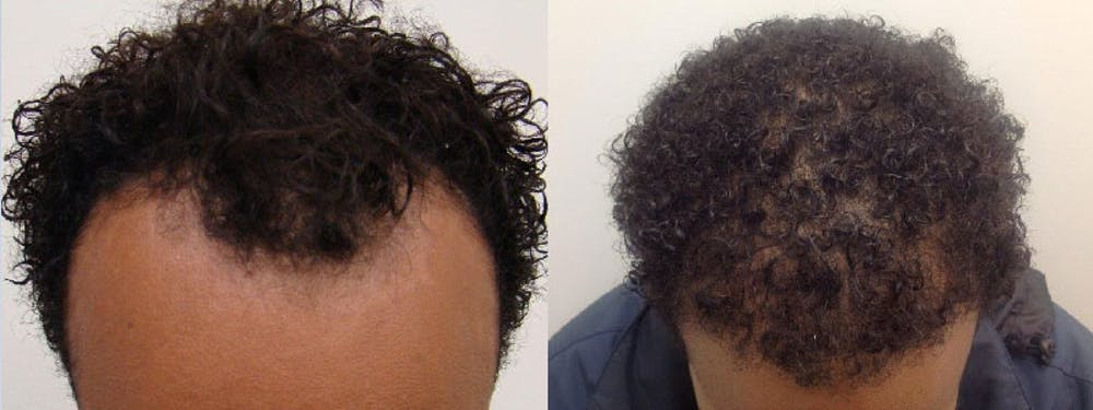 Hair Restoration Gallery - Patient 5681497 - Image 1