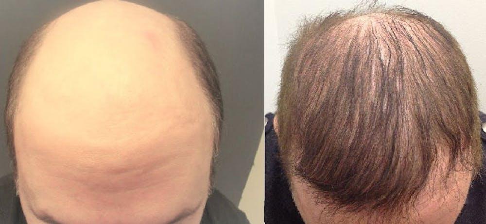 Hair Restoration Gallery - Patient 5681498 - Image 1