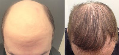 Hair Restoration Gallery - Patient 5681498 - Image 1