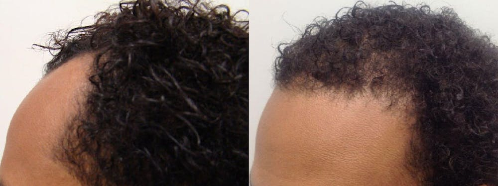 Hair Restoration Gallery - Patient 5681497 - Image 2