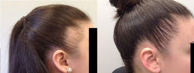 Hair Restoration Gallery - Patient 5681499 - Image 1