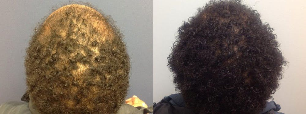 Hair Restoration Gallery - Patient 5681497 - Image 3