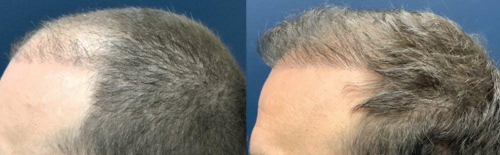 Hair Restoration Gallery - Patient 57557030 - Image 1