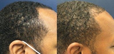 Hair Restoration Gallery - Patient 57557029 - Image 1