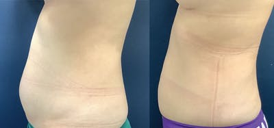 Liposuction Gallery - Patient 61109615 - Image 1