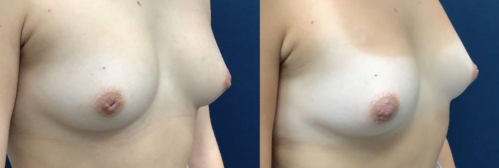 Inverted Nipple Repair Gallery - Patient 61109621 - Image 1