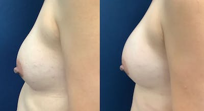 Breast Revision Gallery - Patient 61109624 - Image 1