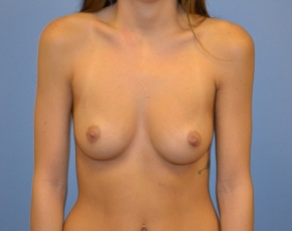 Before and After Breast Augmentation in NYC