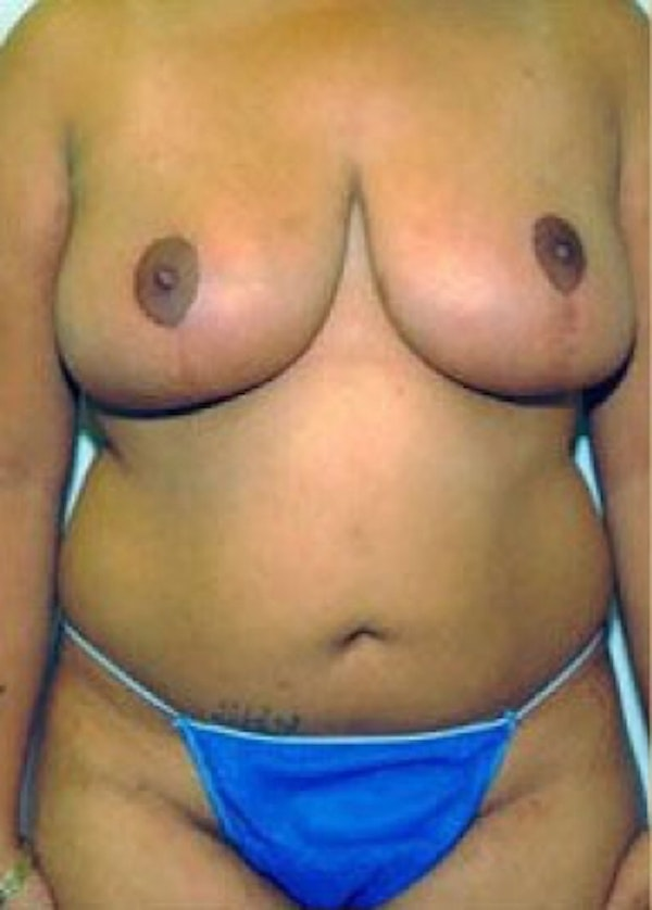 Breast Reduction with Lift