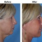 Dr. Miller's face-lift patient