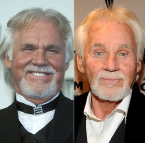 Dr. Andrew Miller discusses what went wrong with Country crooner Kenny Rogers' browlift.