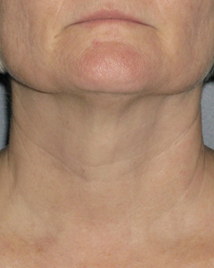 Ultherapy After Results
