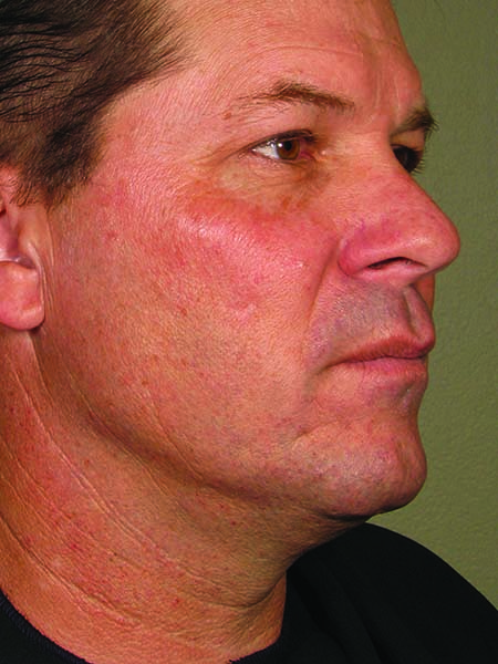 Ultherapy face after