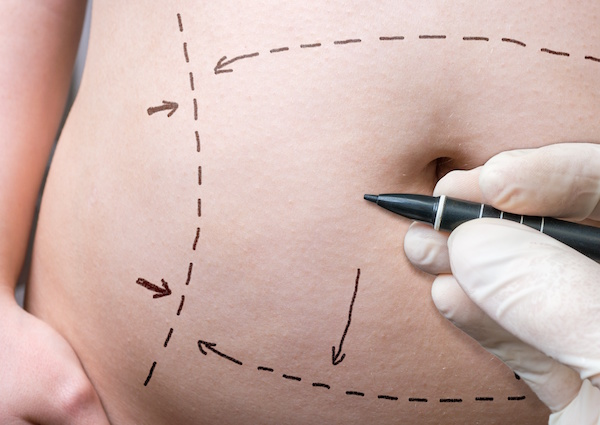 Tummy Tuck Medical Benefits