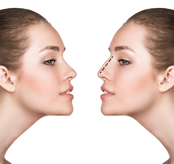 Rhinoplasty New York